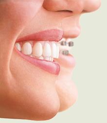 profiles-braces-aligner